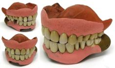 Antique False Teeth 19th Century Vintage Dentures Top & Bottom, Porcelain & Clay (Vulcanite?)