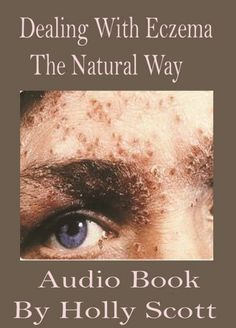 Dealing With Eczema The Natural Way Audio Book by H.Scott - Downloa... How To Avoid Stress, Get Rid Of Eczema, Stress Eating, Allergy Testing, Natural Solutions, Audio Books, Moisturizer, Conditioner, Herbs
