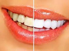 Branqueamento dentário caseiro: receita do dr. Oz