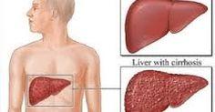 Obat Alami Sirosis Hati, solusi obat sirosis hati dengan menggunakan ektrak teripang laut merupakan solusi tepat untuk mengatasi penyakit sirosis hati atau hepatitis paling aman dan ampuh tanpa efek samping.