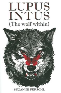 Lupus wolf & Butterfly rash