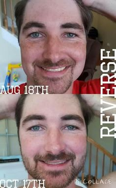 Good skincare isn't just for women. In fact, more men get and die from skin cancer than women. Rodan + Fields Reverse regimen addresses damaged skin and the results can be significant, even in just 2 months!