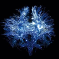 """""""It is clear that the brain is much more than the sum of their individual components. One could consider the brain connectome, set of all neuronal connections, as one single entity, thus emphasizing the fact that the huge brain neuronal communication capacity and computational power critically relies on this subtle and incredibly complex connectivity architecture."""" - Dr. Patric Hagmann:"""