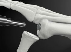 GENIO Italiano Giuseppe Cotellessa: First Synthetic Cartilage Implant Approved by FDA ...