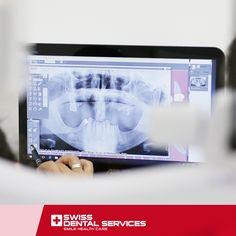 Acreditamos que paciente merece Sorrir, por isso marque já a sua consulta de avaliação e torne-se o próximo paciente satisfeito SDS! www.swissdentalservices.com