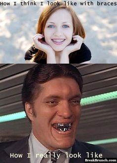 How people look like with braces - http://breakbrunch.com/funny-picture-255