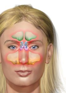 this website is to help you solve all your problems, ( healthy problems , social problems, financial problems, physical problems ) http://selfupgrading.com/what-are-the-symptoms-of-sinusitis/