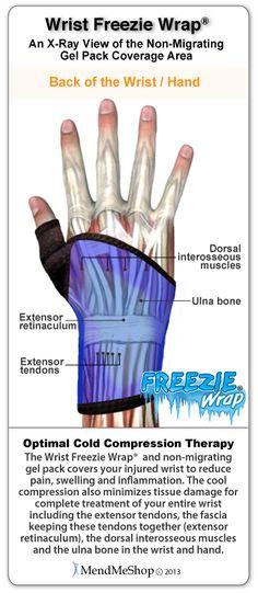 Wrist #Freezie Wrap x-ray view coverage, dorsal interosseous, extensor retinaculum, extensor tendons and ulna bone. http://shop.mendmeshop.com/