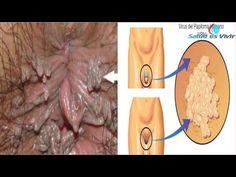 Conoce Cuales son los Síntomas del Papiloma Humano - YouTube