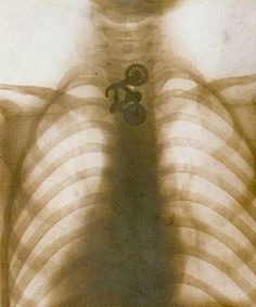 An x-ray of a human skeleton with a small swallowed toy bicycle visible Bokashi, Medical History, Weird And Wonderful, Science And Nature, Human Body, In This World, Black And White, Cool Stuff, Pictures