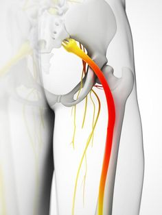 sciatic nerve, art, nrt, active release techniques, neurokinetic therapy