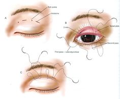 double eyelid surgery before and after double eyelid surgery before and after