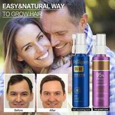 Hair Growth Essence Oil Spray for Hair Regrowth Oil Anti Hair Loss Hair Growth Serum liquid Hair Loss Treatment Hair Tonic - yfy02 zyy60