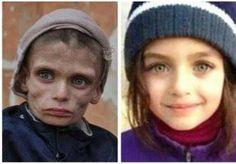 LiveLeak.com - Palestinians Children Being Starved to Death in Yarmouk Damascus