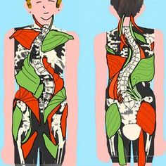 Muscle Imbalances and Scoliosis
