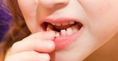 Your #Child's Baby Teeth: To #Pull Or Not To Pull? #MilkTeeth #KidsDentistry #BabtTooth