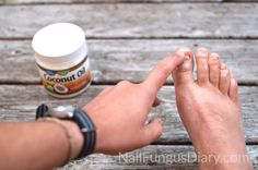 Apply coconut oil to nails to fight nail fungus