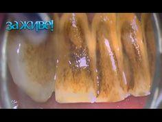Как избавиться от зубного камня без стоматолога – За живе! Сезон 3. Выпуск 31 от 19.10.16 - YouTube