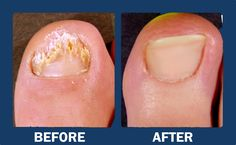 Watch This Video Mind Blowing Home Remedies for Toenail Fungus that Really Work Ideas. Astonishing Home Remedies for Toenail Fungus that Really Work Ideas. Toenail Fungus Remedies, Toenail Fungus Treatment, Nail Treatment, Fingernail Fungus, Fungus Toenails, Fungi, Home Remedies, Beauty, Envelopes