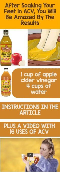 After Soaking Your Feet in Apple Cider Vinegar You Will Be Amazed By The Results