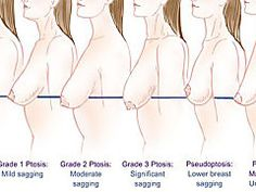 Are you looking for a way to lift your breasts naturally without surgery or weight gain? Have a look at the ways and exercises for natural breast lift.