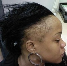 Black Hairstyles For Thin Edges Stunning 3 Hair Loss Conditions Causednatural Hair Practices  Black