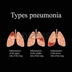The anatomical structure of the human lung. Type of pneumonia. Vector illustration on a black background. Pneumonia Recovery, Pneumonia Symptoms, Nursing School Notes, Nicu Nursing, Health Facts, Health And Nutrition, Lung Infection, Medical Information, Health And Safety