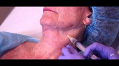 Carboxiterapia NUEVO -Tratamiento Institut Dra Natalia Ribé