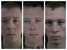 The ravages of war: Series of shocking pictures show the faces of our brave soldiers before and after war