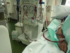 Resultados favorables con altas dosis de hierro en pacientes en hemodiálisis
