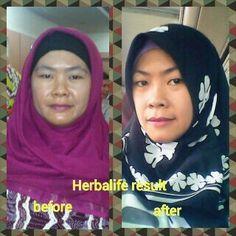 Efek nutrisi yang luar biasa. Lose weight now, ask me how. 7491DF87 085750220239