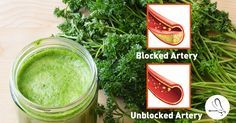 What is atherosclerosis? The hardening of your arteries causing premature death! This Detox Juice is made of heart healthy foods to unclog your arteries.
