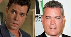 20 Celebrity Before-And-After Plastic Surgery Disasters – Page 16 Celebrities Before And After, Celebrities Then And Now, Ray Liotta, Celebrity Plastic Surgery, Celebrity Gossip, Face And Body, People, People Illustration, Folk