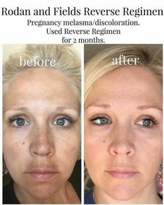 No woman should have a mustache. Melasma from pregnancy is no joke! But there's hope! Lightening and brightening the hyper - pigmentation is key. Need help? Message me for your personal solution. Regain your natural beauty again!