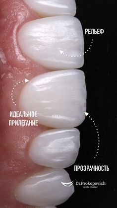 Dental Photos, Dental Anatomy, Beautiful Teeth, Teeth Shape, Acupressure Points, Dental Care, Dentistry, Veneers Teeth, Photo And Video