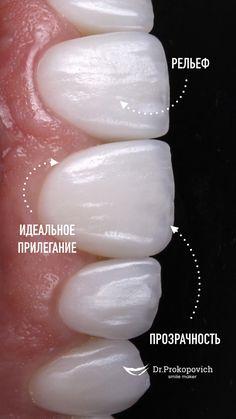 Dental Photos, Dental Anatomy, Veneers Teeth, Beautiful Teeth, Teeth Shape, Acupressure Points, Dental Care, Dentistry, Medicine