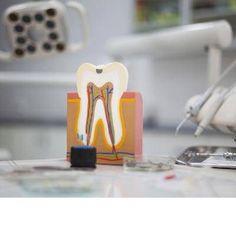 Η γνωστή σε όλους απονεύρωση αποτελεί την ενδοδοντική θεραπεία! Στο κέντρο του δοντιού και καθόλη την εκτασή του – από τη μύλη μέχρι την άκρη της ρίζας – υπάρχει μια κοιλότητα όπου βρίσκεται ο πολφός του δοντιού, γνωστός και ως το «νεύρο του δοντιού». Athens Greece, Dental Health, Dentistry, Clinic, Oral Health, Dental