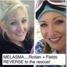This is Katie- 3 months using Rodan + Fields Reverse and 2.5 months Reverse with accelerator pack. Crazy results! Bye Bye Melasma!