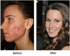 How I Healed My Acne: 3 Foods You Must Avoid for Healthy Skin plus 10 toxin-fighting foods for clear skin, and 3 daily habits: drink water, sleep, and relieve stress.