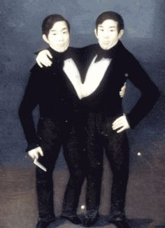 7 Most Incredible Siamese Twins in History