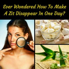 Get rid of pimple in just one day! Yeah, you heard it right! #beauty #skincare #skincaretips #pimple