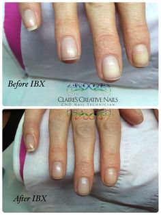 IBX used to repair peeling nails. IBX helps you to grow your natural nails, making them stronger and healthier. Book your IBX appointment at Claire's Creative Nails, Northampton call or text: 07752 397245. #ibx #northampton #nailsalon #naturalnails #repairnails #healthiernails