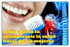 Cómo afecta la osteoporosis la salud bucal de las mujeres | Directorio Odontológico