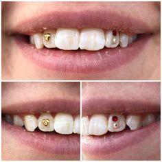 Dental Jewelry, Diamond Teeth, Tooth Gem, Grillz, Dentistry, Headpiece, Belly Button Rings, Jewerly, Swarovski Crystals