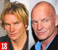 Sting: Career with The Police and later as a solo artist earned him £180 million. Married ...
