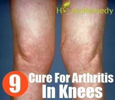 Arthritis is the disease which leads to pain in joints and also affects movement. BUY NOW your Copper Knee Sleeve on Amazon: http://www.amazon.com/Copper-Joint-Knee-Sleeve-Professional/dp/B00Q9RGKXE/?tag=coppe0f5-20