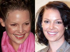 Katherine Heigl always has had a stunning smile but look how stunning she looks with fresh pearly whites! Celebrity Teeth, Celebrity Smiles, Perfect Teeth, Perfect Smile, Dental Veneers, Dental Facts, Katherine Heigl, Lip Injections, Cosmetic Dentistry