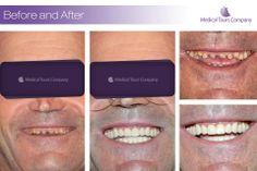 #Dental implants #Dental Crowns #dentist #dental treatment Teeth In A Day, Medical, Tours, Dental Crowns, Dental Implants, Beauty, Medical Doctor, Beleza, Medicine