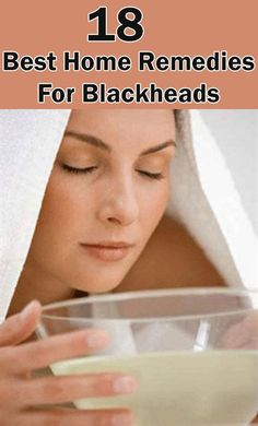 18 Home Remedies For Blackheads