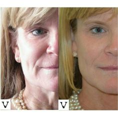 Sculptraaaaah! Yes, still my favorite, even though it takes so long to explain, to inject, to follow up and to wait for results, they are soo worth it! Nobody will know, it's your little secret :) www.visagesculpture.com #sculptra #facelift #boston #newton #botox #face #slimming #radiesse #botox #juvederm #belotero #merz #galderma #allergan #botox #fillers #nose #surgery #alternative #injection #expert #newton #asymmetry #correction #reconstruction #mashabanar #visagesculpture